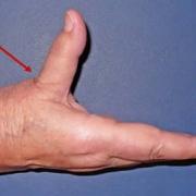 artroza dłoni